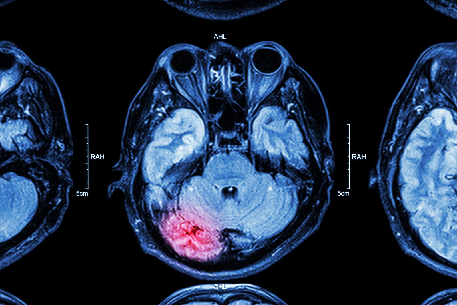 arlington brain injury lawyers - Arlington, TX Brain Injury Attorney