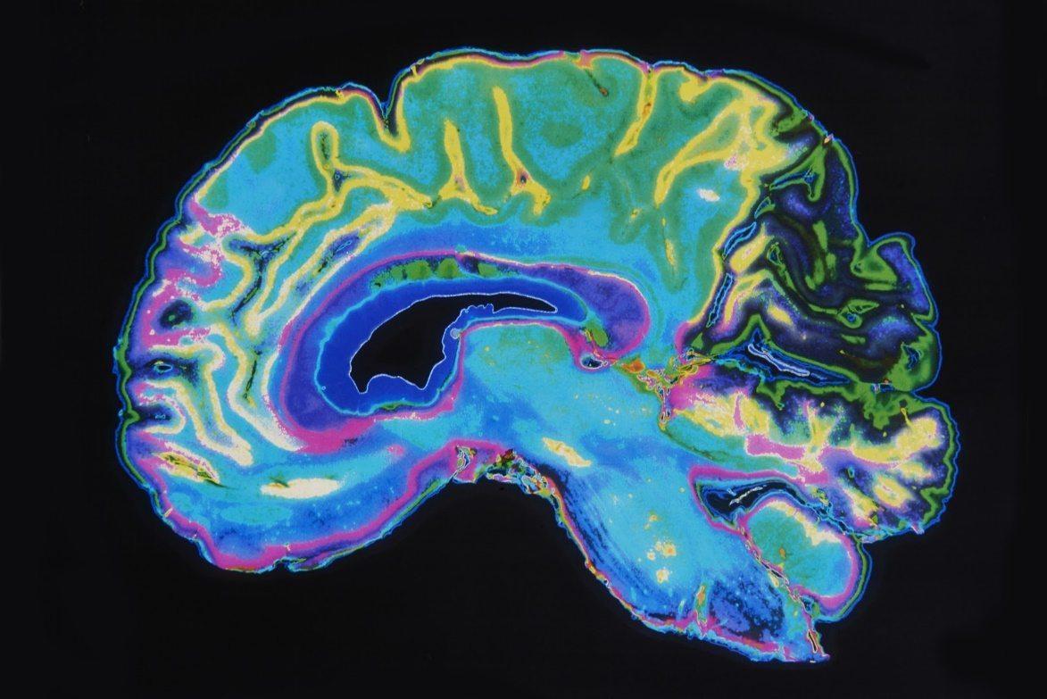 texas personal injury lawyers - Arlington, TX Brain Injury Attorney